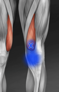 vastus medialis trigger point referral