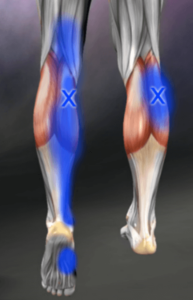 Calf trigger point referral-myofascial pain syndrome