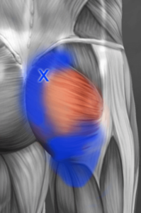 glute maximus trigger point referral