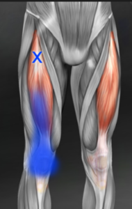 rectus femoris trigger point referral