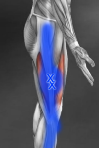 vastus lateralis trigger point referral