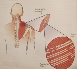How to relieve shoulder tension