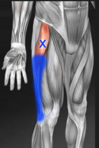 tensor fascia latae trigger point