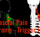 myofascial Pain syndrome--trigger points