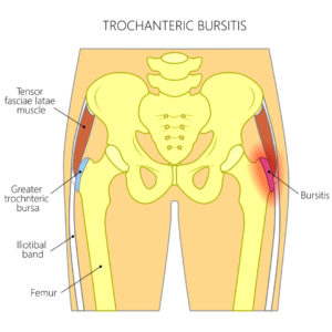 greater trochanteric bursitis