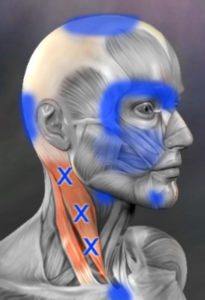 scm trigger point referral