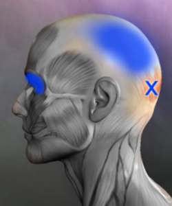 occipital trigger point referral
